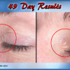J Bio Serum 49 Day Results - Illuminous Eye Serum