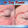J Bio Serum 74 Day Results - Illuminous Eye Serum