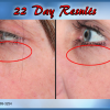 J Bio Serum 22 Day Results - Illuminous Eye Serum