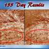 J Bio Serum 155 Day Results