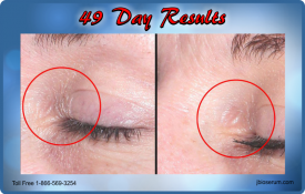 J Bio Serum 49 Day Results