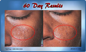J Bio Serum 60 Day Results