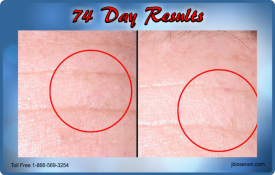 J Bio Serum 74 Day Results