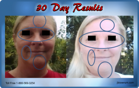 J Bio Serum 30 Day Results