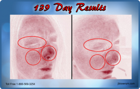 J Bio Serum 139 Day Results