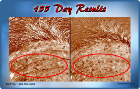 J Bio Serum 55 Day Results