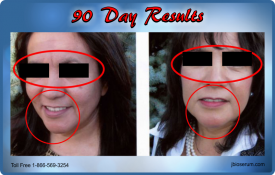 J Bio Serum 90 Day Results