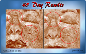 J Bio Serum 45 Day Results